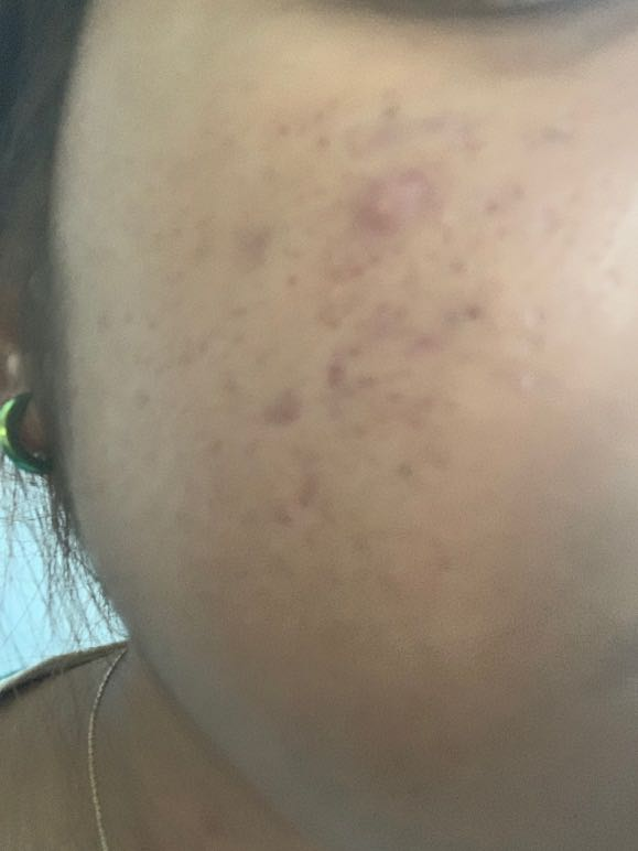 Cure for Severe Acne and Big pores